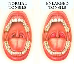 enlarged-tonsils-in-children