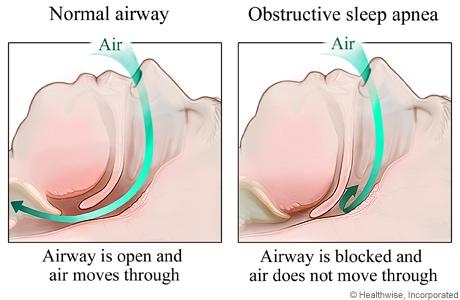 obstructive-sleep-apnea-eric-jackson-dentist-downers-grove
